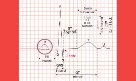 Despolarizacion auricular