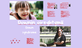 Downin oireyhtymä