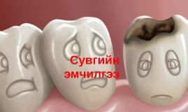 Copy of Сувгийн эмчилгээ