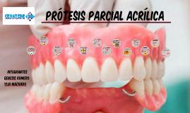 Protesis Parcial Acrílica (PPA)