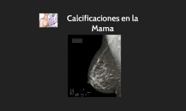 Copy of Calcificaciones en la Mama