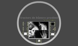 fracturas de humero proximal