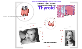 Pediatric Thyroid Disease - Children's Hospital of Michigan resident lecture