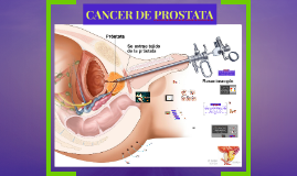 Copy of cancer de prostata