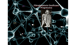 Copy of Fibrodysplasia