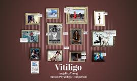 Copy of Vitiligo