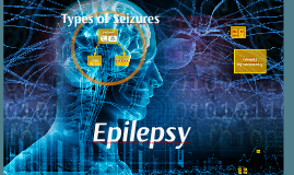 Epilepsy Overview