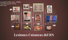 Lesiones Cutaneas del RN