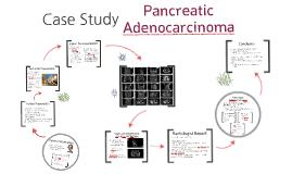 Pancreatic Adenocarcinoma