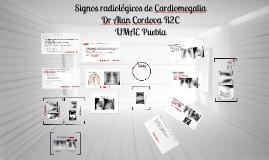 Signos Radiológicos cardiomegalia