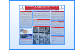Investigation of the Anatomical Role of Schlemm's Canal and