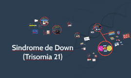 Sindrome de Down (Trisomia 21)
