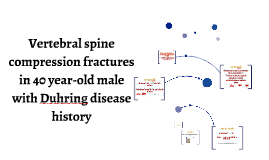 Vertebral spine compression fractures in 40 year-old male wi