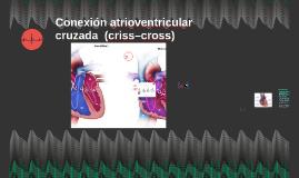 Conexión atrioventricular cruzada  (criss–cross)