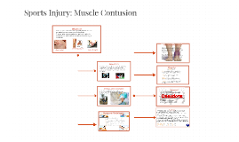 Sports Injury: Muscle Contusion