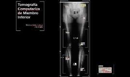 Copy of Tomografía Computarizade Miembro Inferior