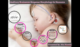 Auditory Brainstem Response Morphology In Neonates