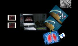 Ventilation mécanique sans canule artérielle, quels-sont nos choix?