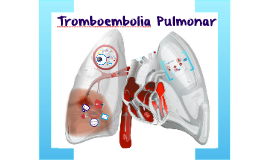 Copy of Tromboembolia Pulmonar