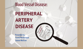 Copy of Peripheral Arterial Disease