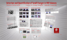 Copy of Small changes in MRI