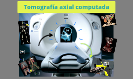 Generaciones de Tomografia Axial