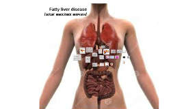 Copy of Copy of fatty liver disease /элэг өөхлөх өвчин/