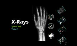 Copy of X-Rays