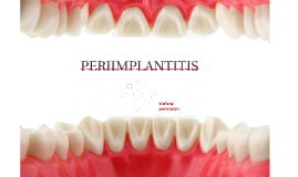 Copy of PERIIMPLANTITIS