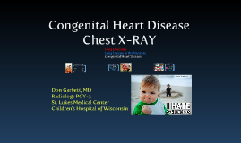 Congenital Heart Disease CXR