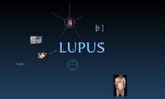 Systemic Lupus Erythmatosus