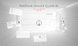 Copy of Patellofemorale contactdruk bij patella alta
