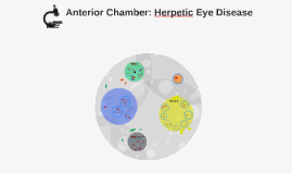 Anterior Chamber: Herpetic Eye Disease