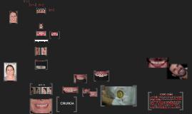 Copy of Resolução estética utilizando o DSD (Digital Smile Design)