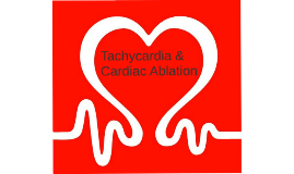 Tachycardia & Cardiac Ablation