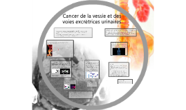 Cancer de la vessie et des voies excrètrices urinaires