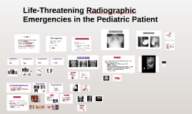 Life-Threatening Radiographic Emergencies in the Pediatric P
