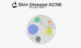 Skin Disorder:ACNE