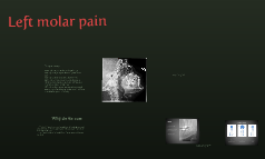 Left molar pain