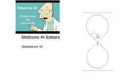 Sindrome de Edwars