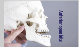 anterior Over bite
