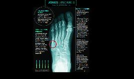 Jones Fractures Page 1