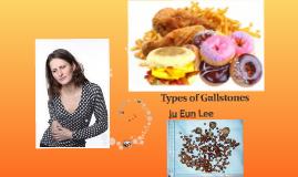 Types of Gallstones
