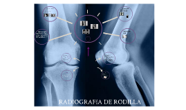 Copy of RADIOGRAFíA DE RODILLA