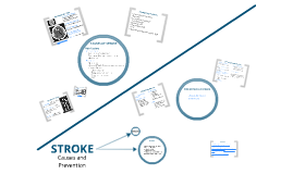 Copy of Stroke: Causes and Prevention