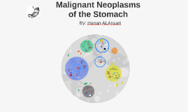 Malignant neoplasm of the stomach