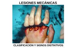 TEMA 3 - LESIONES MECÁNICAS. CLASIFICACIÓN Y SIGNOS DISTINTIVOS