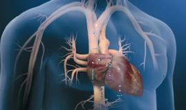 SVA ADULTO-2-DESFIBRILACIÓN-CARDIOVERSIÓN