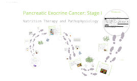 Pancreatic Exocrine Cancer