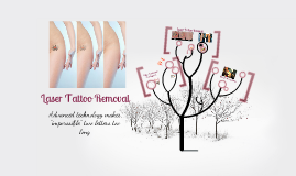 Copy of Laser Tattoo Removal